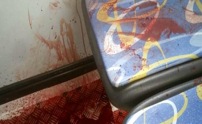 *  RN sangrando: mulher morre baleada durante assalto a ônibus em Parnamirim.