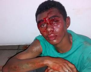 Suspeito atira contra policial, é preso e quase linchado após assalto